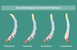 Schaubild: Aufrichtung der kindlichen Wirbelsäule